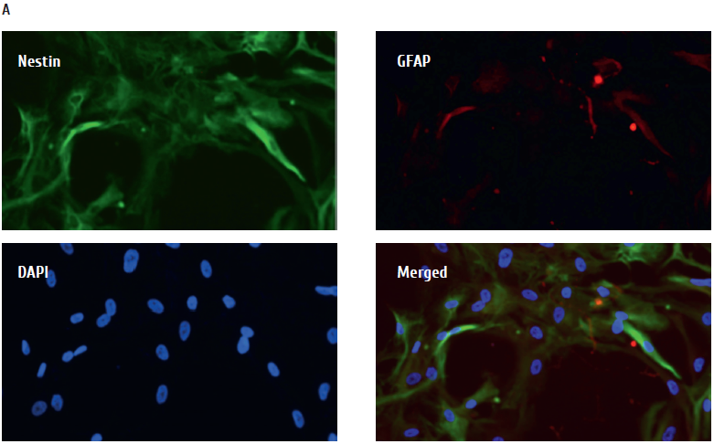 Fig 4. Immunofluorescence images of primary human NSC characterization. Monolayer cell from Patient 4 was positive.png