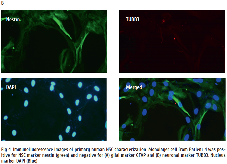 Fig 4. Immunofluorescence images of primary human NSC characterization. Monolayer cell from Patient 4 was positive 1.png