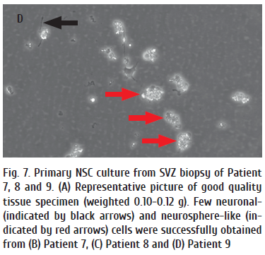 Fig. 7. Primary NSC culture from SVZ biopsy of Patient (1).png